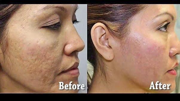 Acne: Before and After