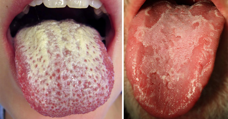 tongue with white patches